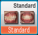 EyeSpecial C2 Standard Mode