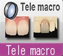 EyeSpecial C2 Tele Macro Mode