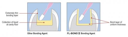 FL Bond II