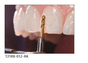 Filing & Bonding Resin Remover (2)
