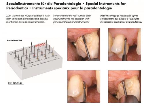 Periodontics Instruments