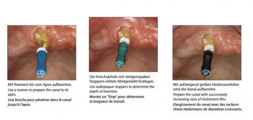 Endodontic 1
